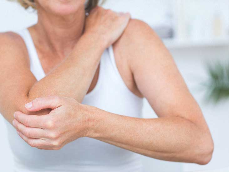 Dermatomyositis: Causes, Symptoms, and Treatment