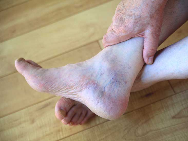 Psoriatic Arthritis Hands Feet And More