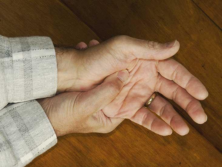 Psoriatic Arthritis Mutilans What Is It?