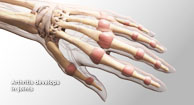 graphic of hand skeleton
