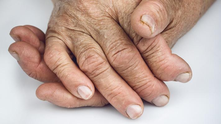 mood disorders and arthritis