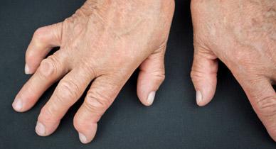 Understanding the Dangers of Untreated RA