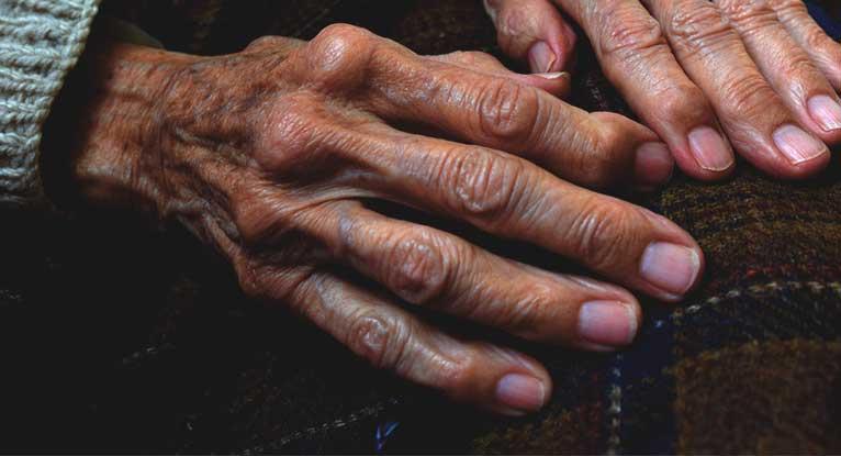 What Does Rheumatoid Arthritis Look Like?