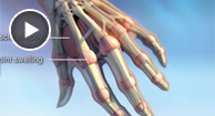 rheumatoid arthritis anatomy illustrations