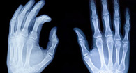 x-ray of rheumatic hands
