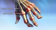 Bodies In Motion: Rheumatoid Arthritis