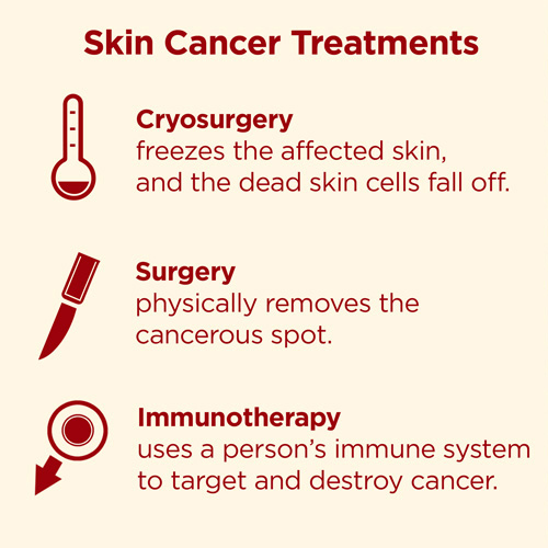 melanoma treatments