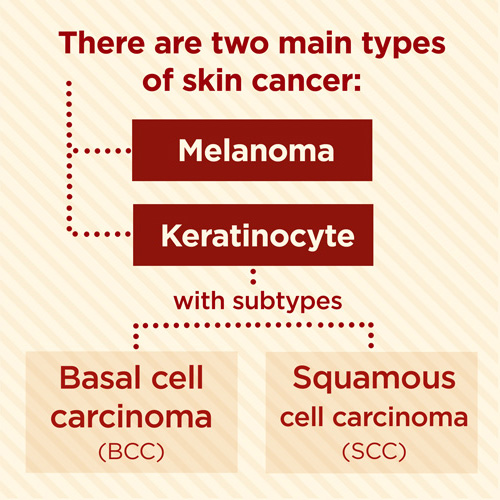 skin cancer types