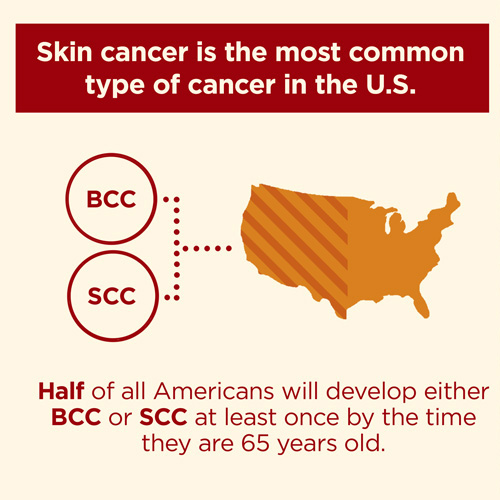 Skin Cancer: Statistics, Facts and You
