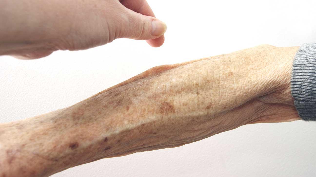 Skin Turgor & Skin Turgor Test for Dehydration in Children u0026 the Elderly Treatment
