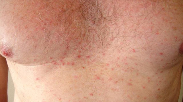 dermatoses  causes  treatments  and more