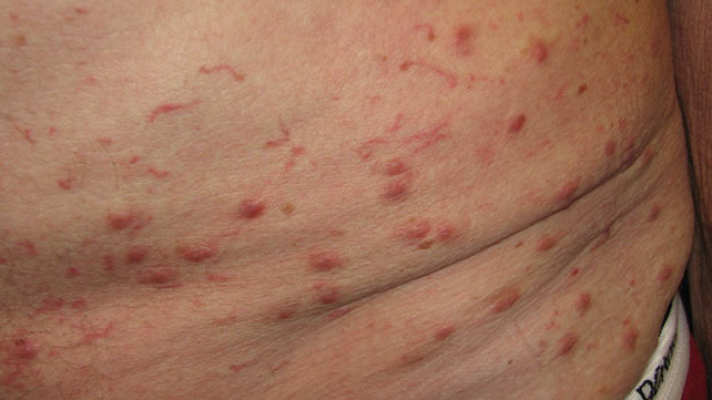 scabies: symptoms, pictures, and diagnosis, Cephalic Vein