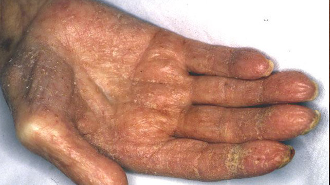scabies: symptoms, pictures, and diagnosis, Human Body