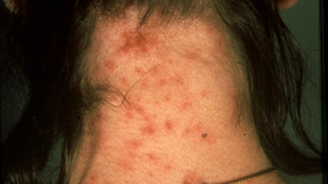 Skin Infection Pictures Causes And Treatments