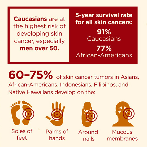 the statistics of skin cancer deaths in america The following material has been sourced from the australian institute of health and welfare.