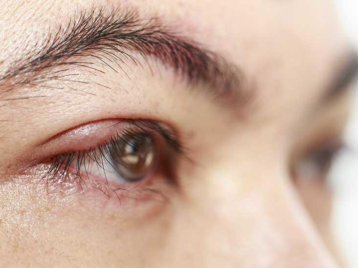 Heliotrope Rash and Other Dermatomyositis Symptoms
