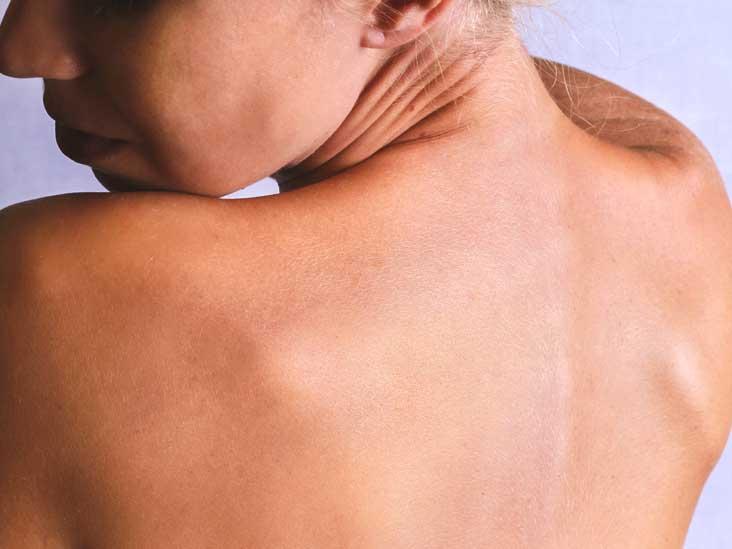 Spongiotic Dermatitis -Causes-Treatment - MedHelp