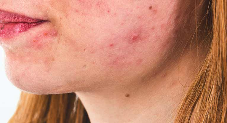 Accutane (Isotretinoin) Side Effects: What You Need to Know
