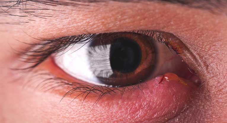 Cellulitis of Eyelid (Orbital Cellulitis)