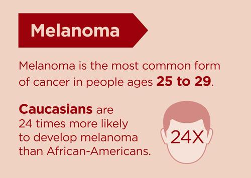 melanoma age