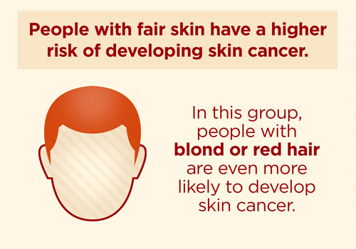 hair color skin color melanoma