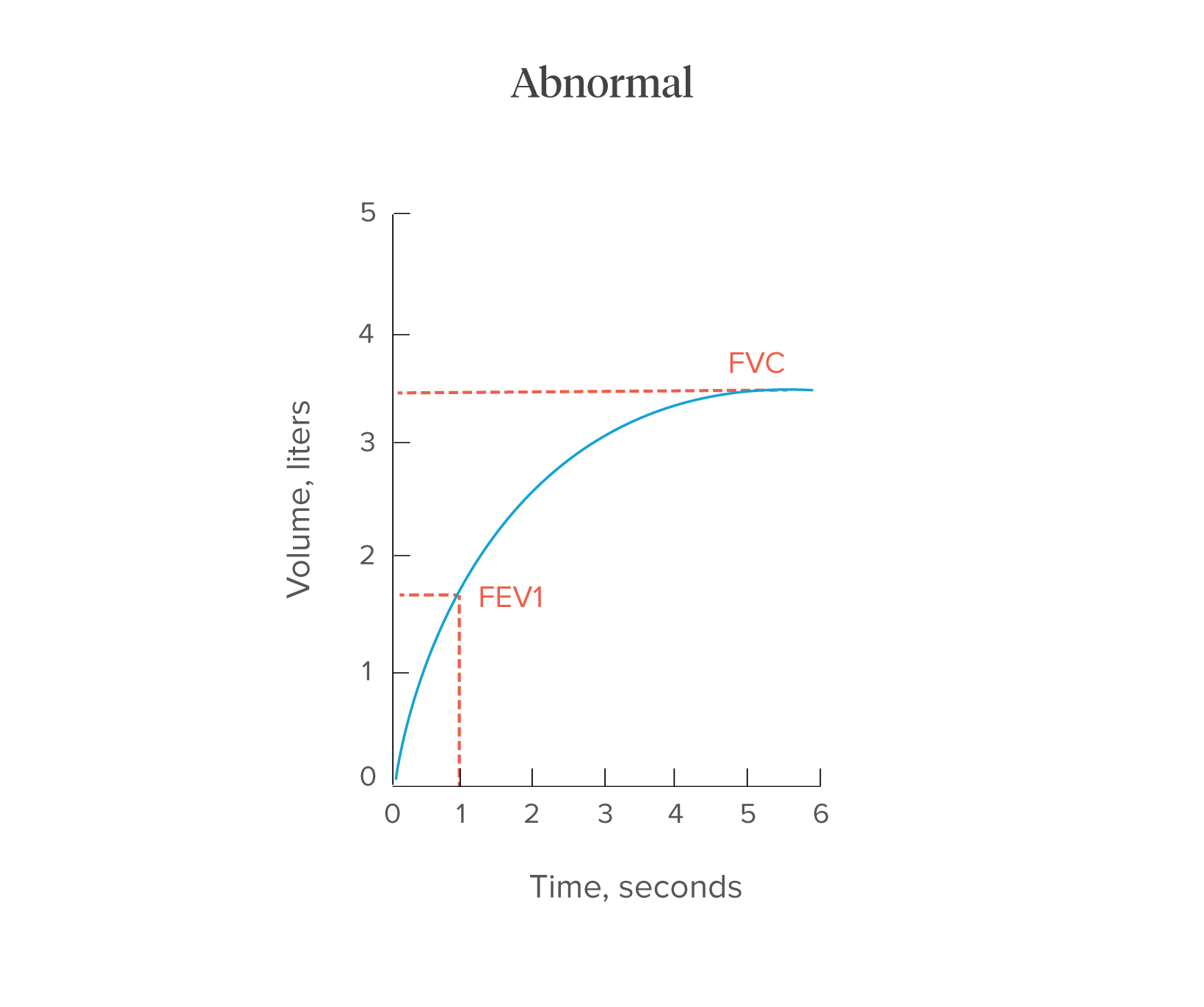 Spirometry Procedure Normal Values And Test Results