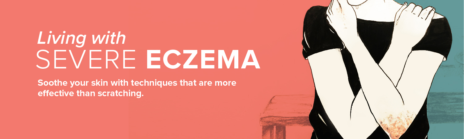 Living with Severe Eczema