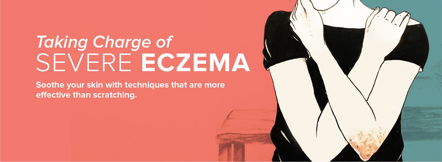 Taking Charge of Severe Eczema