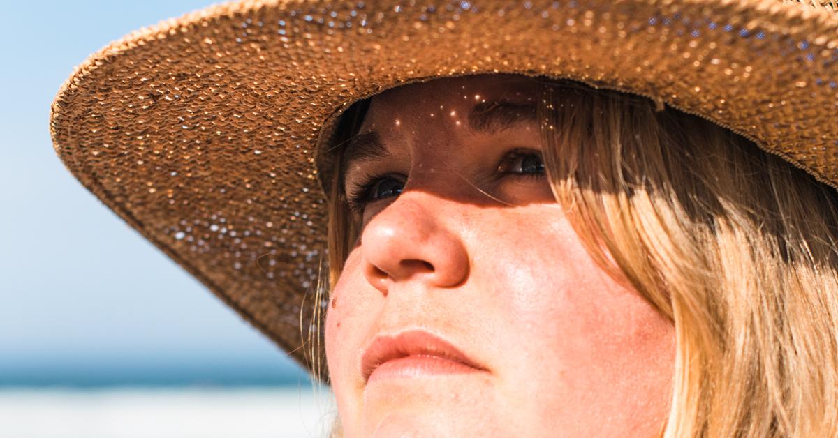 080f51fb8d151 Sunburned Eyelids  What You Should Know