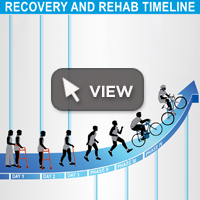 Recovery and Rehab Timeline Infographic