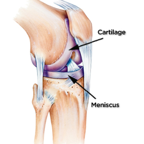 discover 5 common causes of severe knee pain, Skeleton