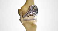 Understanding Your Artificial Knee