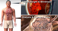 The Long-Term Effects of Type 2 Diabetes