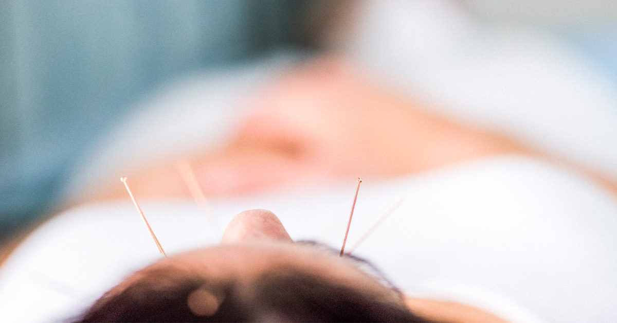 Acupuncture for Depression: Does It Really Work? And 12