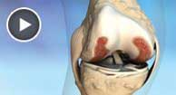 medical animation of the inside of the knee of an osteoarthritis sufferer