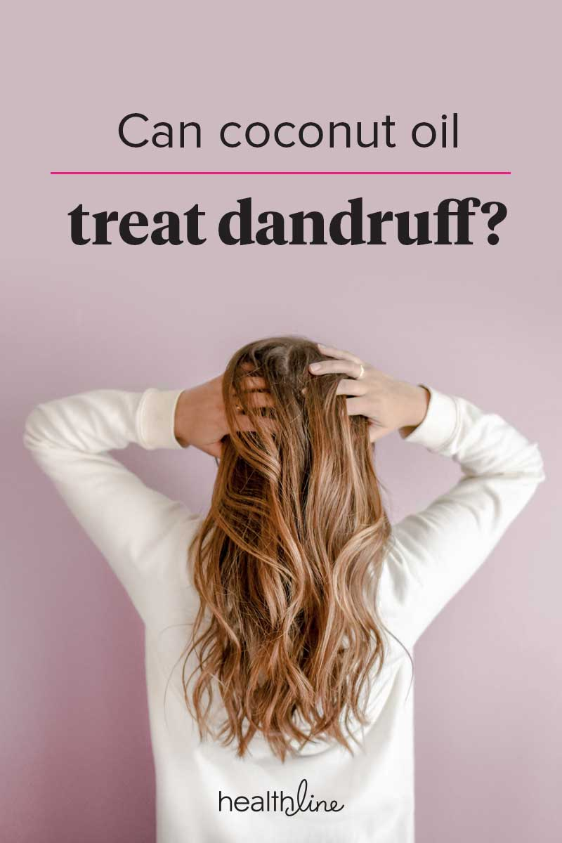 coconut oil for dandruff: treatment, itchy scalp, and how to use it