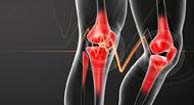 image of a knee with osteoarthritis